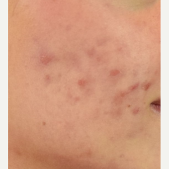 25-34 year old woman treated with Microneedling before 3109419