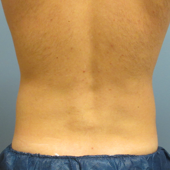 35-44 year old man treated with CoolSculpting after 3763954
