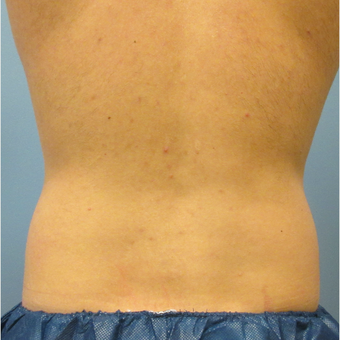 35-44 year old man treated with CoolSculpting before 3763954