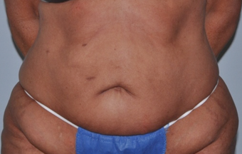 55 Year Old Executive - Tummy Tuck before 1357278
