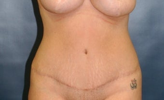 Woman treated with Tummy Tuck after 2759294