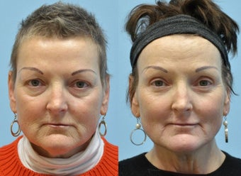 51 year old woman after CO2 laser resurfacing around the mouth before 1281436