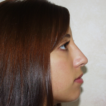 18-24 year old woman treated with Rhinoplasty after 3384039
