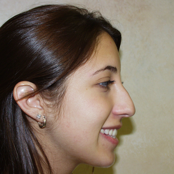 18-24 year old woman treated with Rhinoplasty before 3384039
