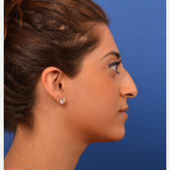 Ethnic rhinoplasty before 3220580