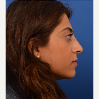 Ethnic rhinoplasty after 3220580