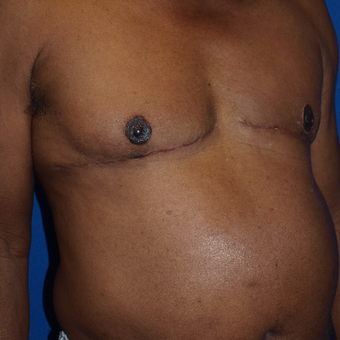 75 and up year old man treated with Male Breast Reduction after 3401428