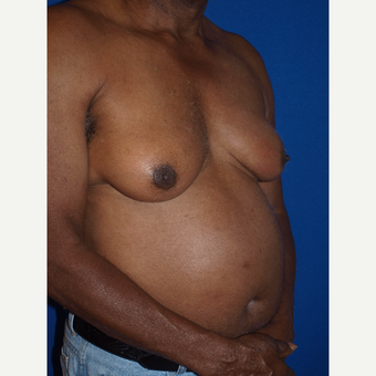 75 and up year old man treated with Male Breast Reduction before 3401428