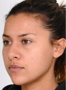 18-24 year old woman treated with Rhinoplasty before 3259368