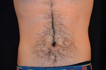 CoolSculpting to Lower abdomen after 734637