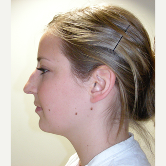 18-24 year old woman treated with Rhinoplasty before 3686988