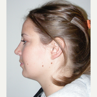 18-24 year old woman treated with Rhinoplasty after 3686988