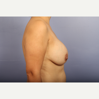 25-34 year old woman treated with Breast Lift with Implants before 3110316