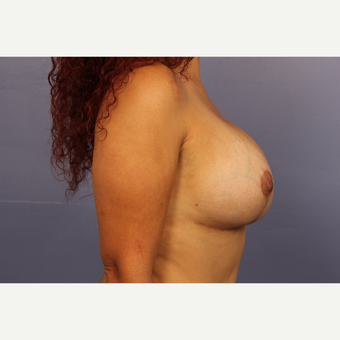 25-34 year old woman treated with Breast Lift with Implants after 3110316
