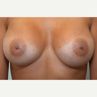 Breast Augmentation after 3108823