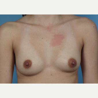 25-34 year old woman treated with Breast Augmentation before 3245211