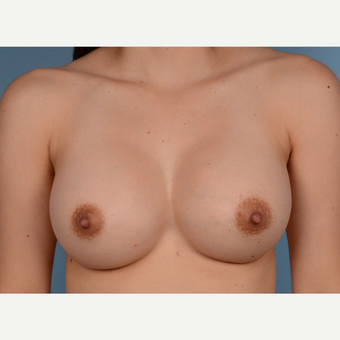 25-34 year old woman treated with Breast Augmentation after 3245211