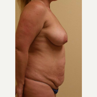 45-54 year old woman treated with Mommy Makeover before 3434701