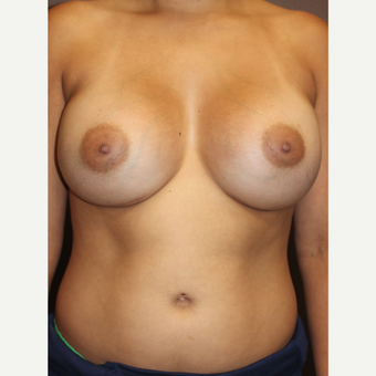 25-34 year old woman treated with Breast Implants after 3423918