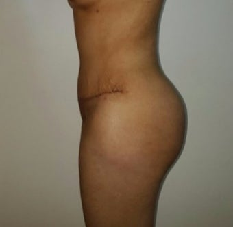 25-34 year old woman treated with Brazilian Butt Lift after 3176265