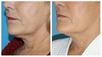 Non-Surgical Neck Lift before 1496790