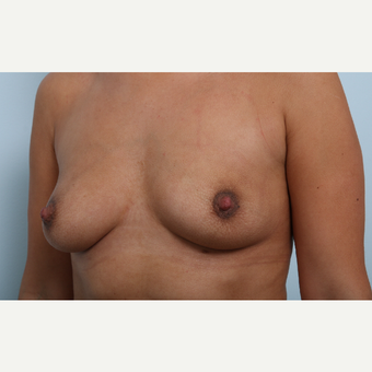 Breast Augmentation before 3345931
