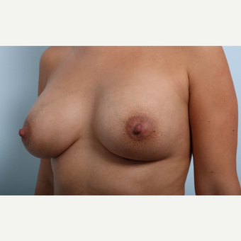 Breast Augmentation after 3345931