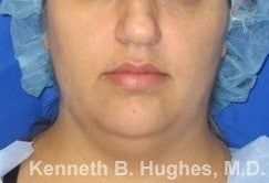 Chin Liposuction before 3141678