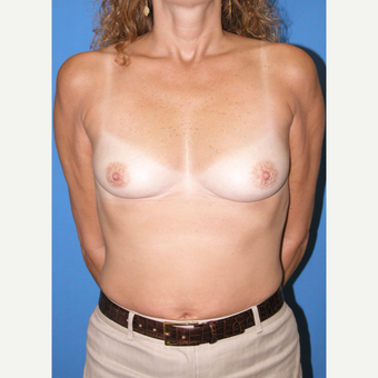 35-44 year old woman treated with Breast Implants before 3090482