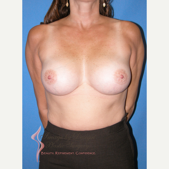 35-44 year old woman treated with Breast Implants after 3090482