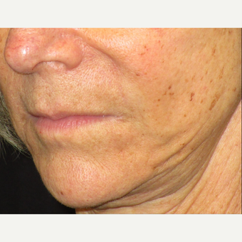 65-74 year old woman treated with Juvederm after 3153666