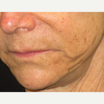 65-74 year old woman treated with Juvederm before 3153666