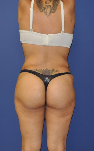 Brazilian Butt Lift and Tummy Tuck 1236953