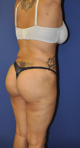 Brazilian Butt Lift and Tummy Tuck after 1236953