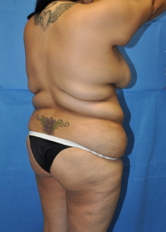 Brazilian Butt Lift and Tummy Tuck before 1236953