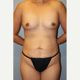 35-44 year old woman treated with Mommy Makeover before 3815651