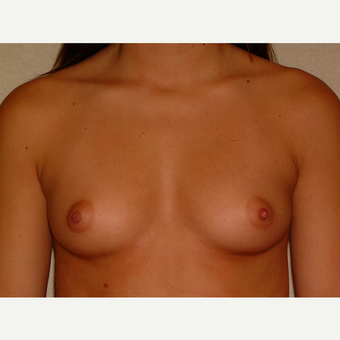 20 y/o Transaxillary Submuscular Breast Augmentation before 3066465
