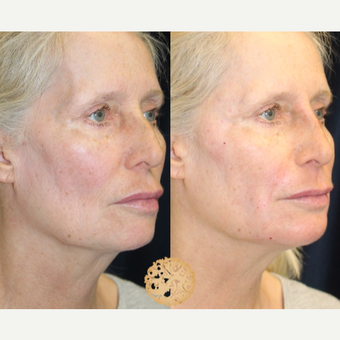 55-64 year old woman treated with Non-Surgical Neck Lift after 2725135