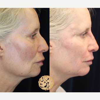 55-64 year old woman treated with Non-Surgical Neck Lift before 2725135
