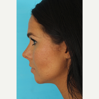 35-44 year old woman treated with Rhinoplasty after 3629317