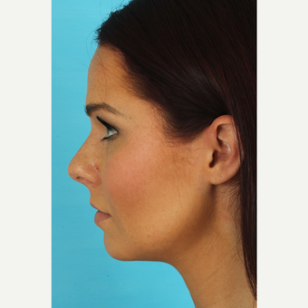 35-44 year old woman treated with Rhinoplasty before 3629317