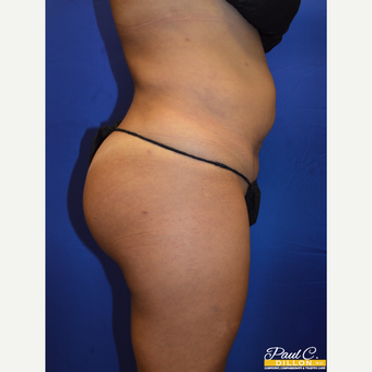 35-44 year old woman treated with Brazilian Butt Lift after 3604289