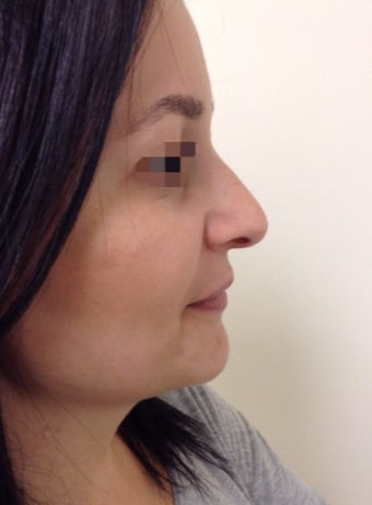nonsurgical nose correction with Juvederm before 3589944