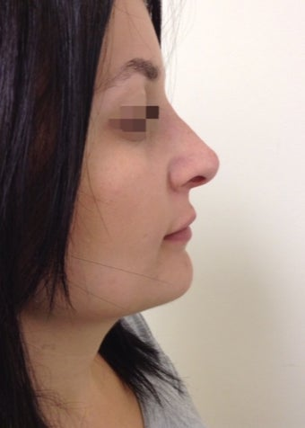 nonsurgical nose correction with Juvederm after 3589944
