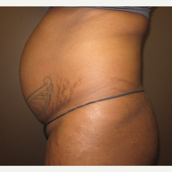 35-44 year old woman treated with Tummy Tuck before 3213859