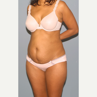 35-44 year old woman treated with Tummy Tuck before 3559288