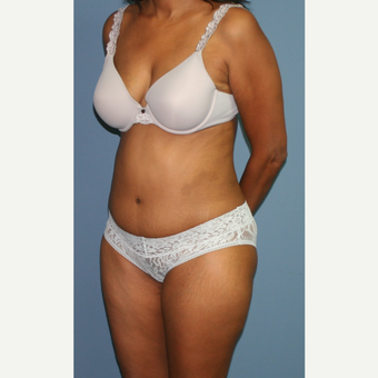 35-44 year old woman treated with Tummy Tuck after 3559288