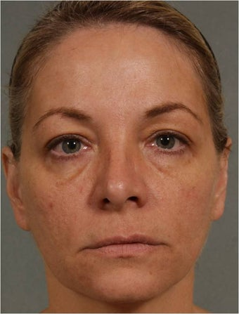 47 year old female treated for loss of volume under eyes, cheeks, and lips before 791059