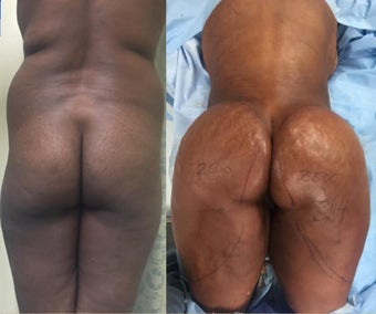 35-44 year old woman treated with Brazilian Butt Lift before 2637158