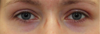 Ptosis surgery for left eyelid droop